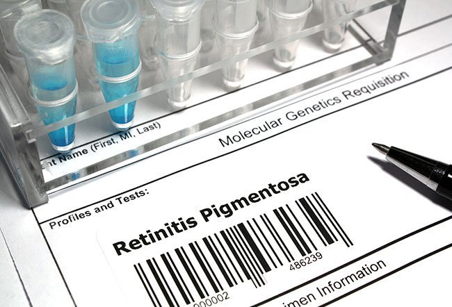 Genetic tests can identify genes associated with retinitis pigmentosa.