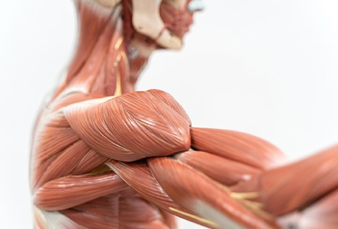 What Is Rhabdomyolysis?
