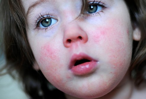 The main goal of treating scarlet fever is to relieve the fever.