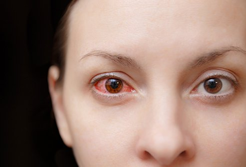 Inflammation of the white of the eye is a sign of scleritis.