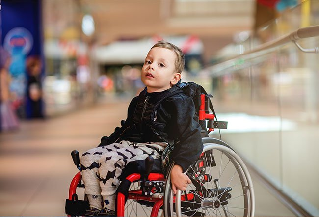 Spinal muscular atrophy (SMA) is a hereditary (running in families) disorder that progressively destroys the motor nerve cells (neurons) leading to muscle weakness and wasting (atrophy).