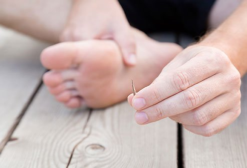Splinters are usually wood, glass, or metal shards that penetrate your skin.