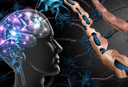 Illustration of the brain with one healthy myelin sheath and one being destroyed
