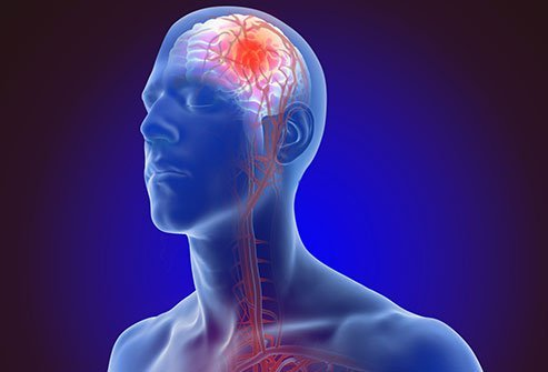 Stroke: FAST, Symptoms, Causes, Types, Treatment, Prevention
