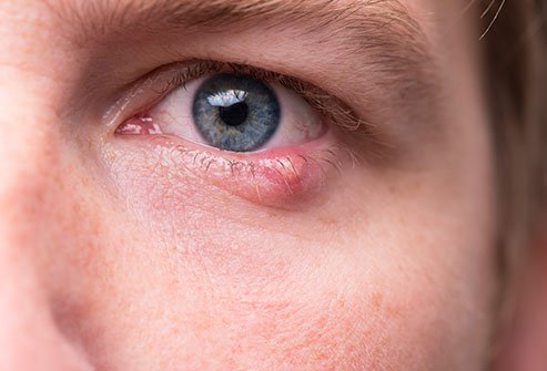 It is usually not possible to get rid of a stye completely overnight