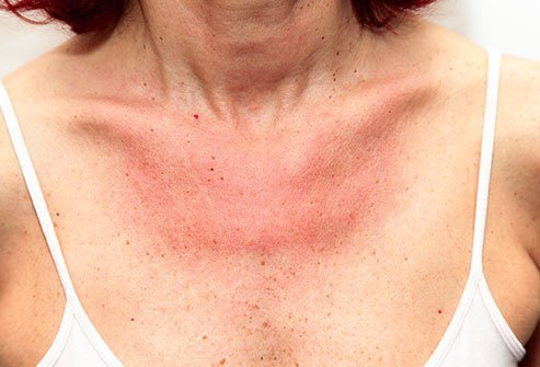 The most common cause for red spots is sunburn, but a condition called polymorphous light eruption (PLE) or heat rash might be to blame as well.