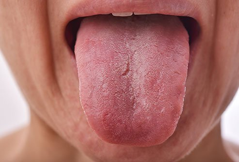 Your tongue has bumps on the back called papillae that are part of its normal anatomy; do nothing if you have no other symptoms. New or different bumps or masses can be caused by infections or other conditions.