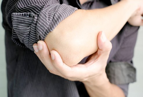 A tennis elbow is a condition in which the swelling of the tendon causes pain