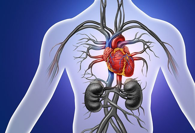Tetralogy of Fallot or TOF is a congenital (present since birth) heart defect that affects the normal flow of blood in the heart.