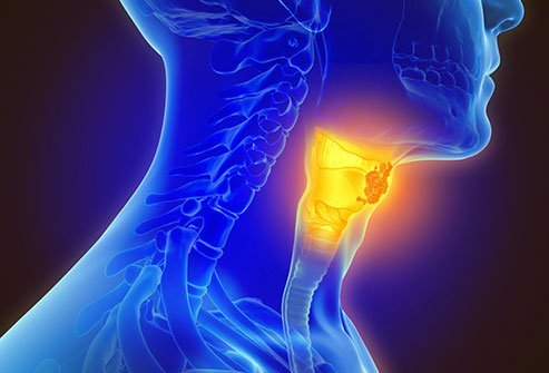 Throat Cancer (Larynx Cancer) Symptoms, Causes, Survival Rate