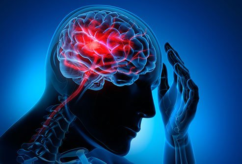 Thrombolytic therapy is used only to treat an ischemic stroke in people who do not have other bleeding disorders, among other criteria.