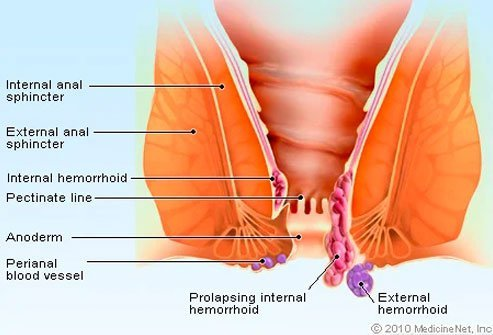 Many thrombosed external hemorrhoids may go away within a few weeks.