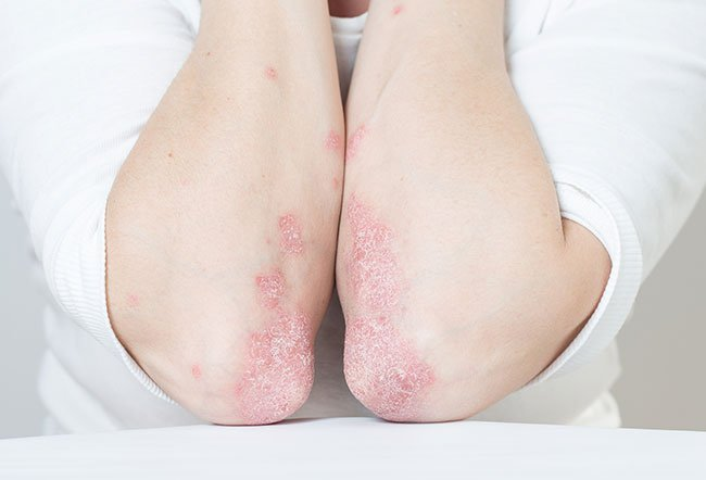 Psoriatic arthritis is a type of inflammatory arthritis that may develop in people with psoriasis. Other conditions that can mimic or have similar symptoms as psoriatic arthritis include axial spondyloarthritis, enteropathic arthritis, gout, osteoarthritis, plantar fasciitis, reactive arthritis, and rheumatoid arthritis.