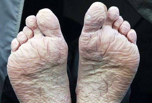 Trench Foot What Is It Symptoms Diagnosis And Treatment