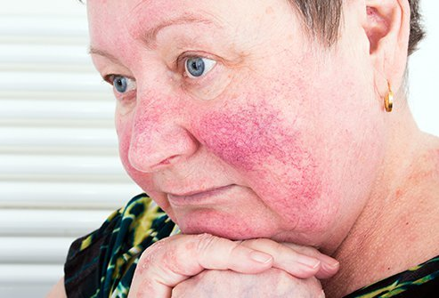 Rosacea cannot be cured, but it can be kept under control