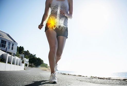 Your body has over 150 bursae. Bursitis is an inflammation of the bursae. Two major bursae are located in your hip and most cases of hip bursitis will heal with rest and at-home care. But medications, steroid injections, physical therapy, fluid removal, and surgery are additional options for treatment and relief.