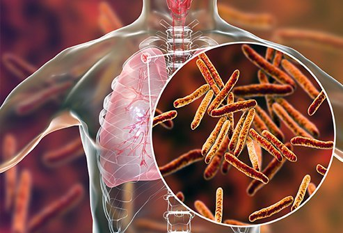 Tuberculosis is a bacterial infection that can be cured with antibiotics.