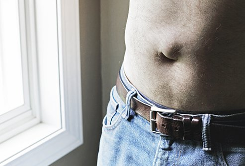 An umbilical hernia in adults can produce a bulging belly button.