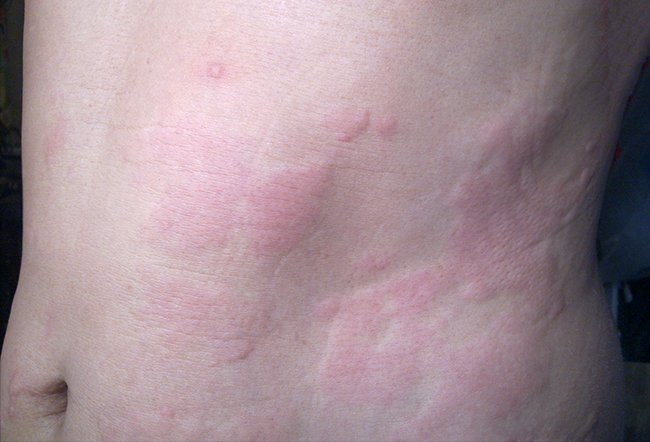 Aquagenic urticaria or aquagenic pruritus is a rare dermatological condition. There is no cure for aquagenic pruritus, but it is treated with oral medications, phototherapies, TENS, topical creams and by adding sodium bicarbonate to bath water.