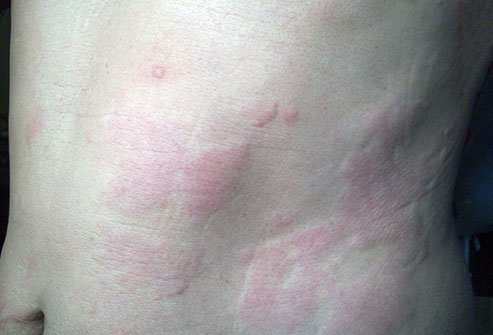 Hives are itchy bumps that appear on your skin, usually as a result of an allergic reaction. Some cases of hives have no known cause.