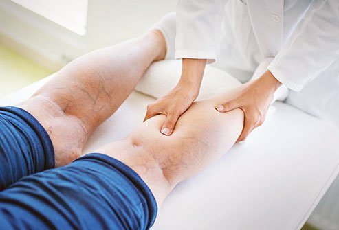 You can't remove spider veins with over-the-counter or prescribed pills, creams, or gels. Other at-home or medical treatments for spider veins can reduce or remove them.