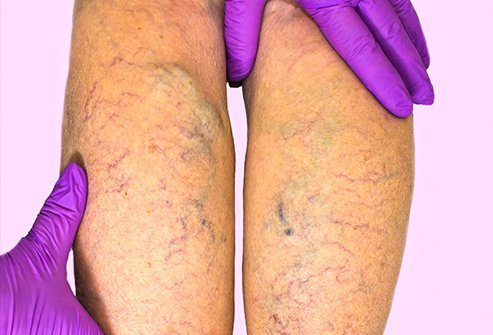 Chronic venous insufficiency can happen after you get a blood clot in veins deep in your legs.