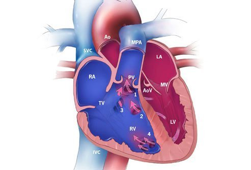 A ventricular septal defect (VSD) is the most common form of congenital heart disease.