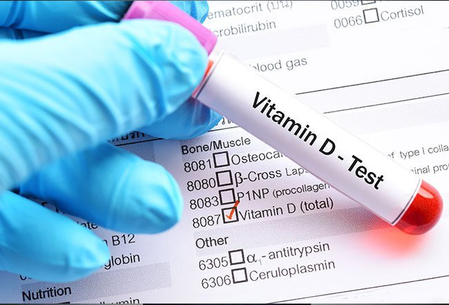 Vitamin D is a fat-soluble vitamin that helps you absorb calcium and build strong bones. The vitamin D test determines your vitamin D levels from a sample of blood drawn from your vein.