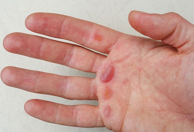 The most common causes of blisters on the hand include eczema, friction injury, irritation from chemicals or allergens, medication reaction, infections, burns, or diabetes.
