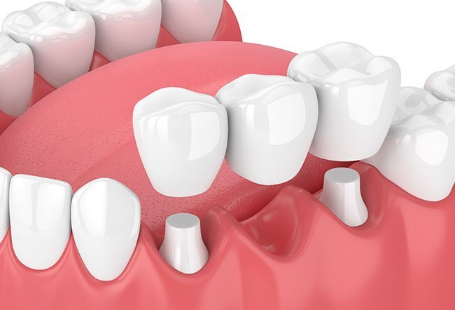 Dental bridges or bridges are used when there are one or more missing teeth.