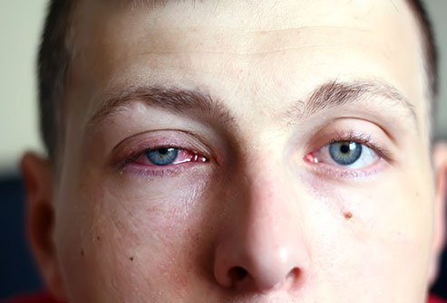 Conjunctivitis (eye membrane infection), keratitis (cornea infection), corneal ulcers, styes, blepharitis (eyelid infection) and uveitis (infection of the eye's middle layer) are all possible types of eye infection
