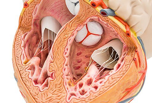 Heart valve disease may be seen at birth or it may develop later in life