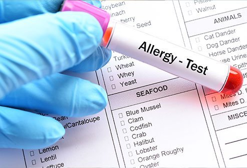 Allergists recognize four types of allergic reactions: Type I or anaphylactic reactions, type II or cytotoxic reactions, type III or immunocomplex reactions and type IV or cell-mediated reactions.