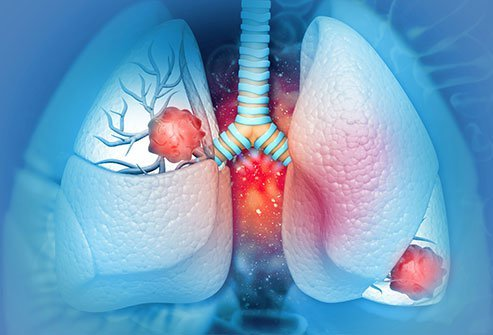 The four types of lung cancer are based on the cell types and location, as well as how they look under a microscope.