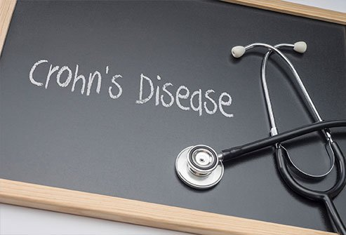 Crohn's disease worsens without treatment. When left untreated, Crohn's spreads throughout the intestinal tract, causing severe symptoms and a bleaker outlook to treatment. Colon cancer is more likely to develop in people with untreated Crohn's in their large intestine.