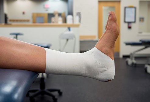 Ankle taping and bracing provides stability to the ankle joint doing vigorous athletic activity; whether to protect the joint from injury or to stabilize and existing injury.