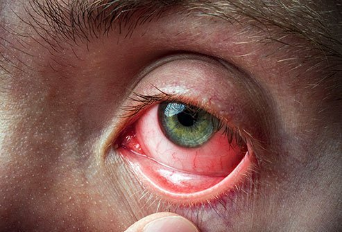 Allergic conjunctivitis is the medical term for an eye allergy. Treatments for allergic conjunctivitis include antihistamines and mast cell stabilizers.