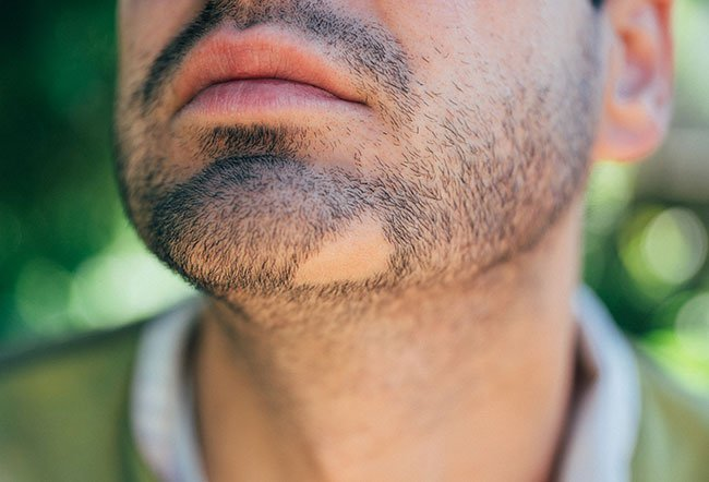 There is no cure for alopecia areata, but there are treatments available that some people find beneficial.