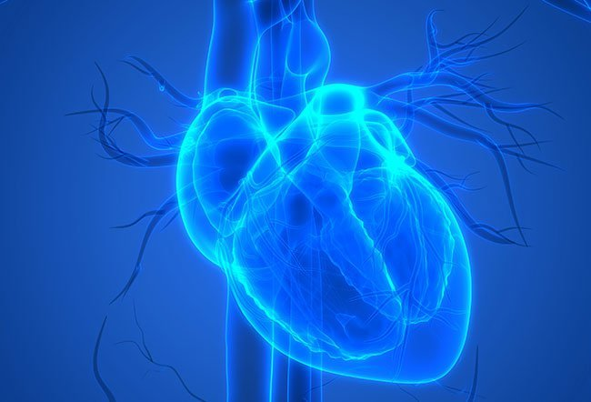 Pericarditis is an inflammation of the tissue called the pericardium, that surrounds your heart. Sometimes your pericardium can weaken enough that it develops infection and inflammation.