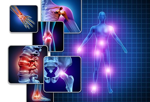 Fibromyalgia is a condition characterized by widespread pain