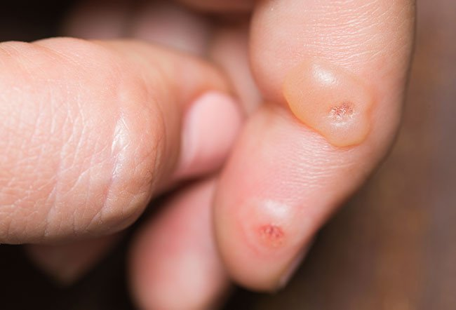 Warts are small skin growths that are usually harmless and that are caused by the human papillomavirus.