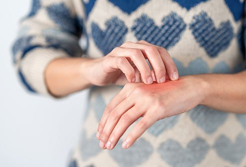 What Causes Complex Regional Pain Syndrome (CRPS)?