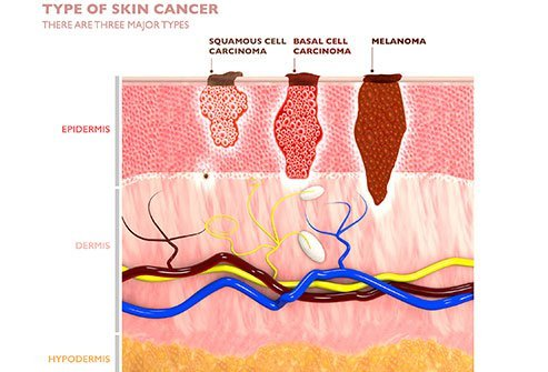 Melanoma is the most aggressive of skin cancers. Changes in the skin, changes in existing moles and non-healing sores are all early signs of melanoma.