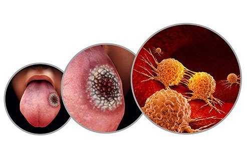 Mouth cancer is also referred to as oral cancer.
