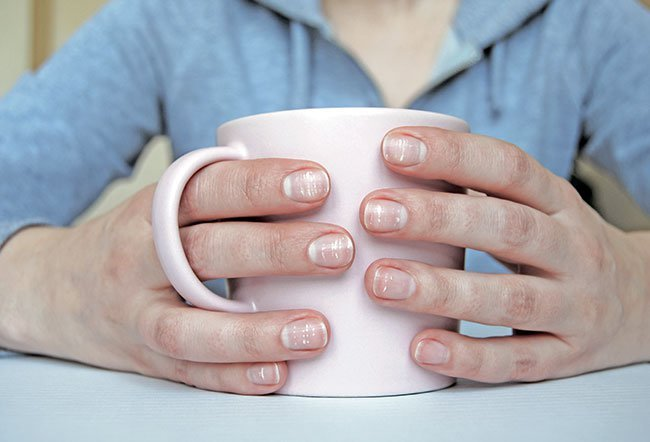 White nails are indicative of any or a combination of the conditions including anemia, overuse of nail polish, weak nails, kidney disease, heart disease, diabetes, rheumatoid arthritis and liver disease.