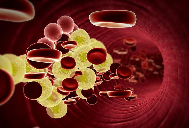 Hyperlipidemia is the medical term for high cholesterol. Hyperlipidemia usually has no symptoms, so many people may not be aware that they have high cholesterol.