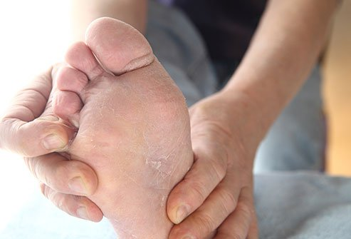 Athlete's foot is a contagious foot infection caused by fungi. These fungi thrive in closed, warm, moist, damp environments such as locker rooms, showers, and swimming pool areas and even moist socks. A scaly rash between the toes stinging, burning, and itching are common for this contagious condition.