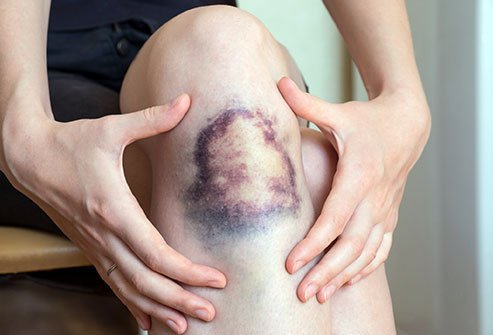 Broken small blood vessels cause bruises.