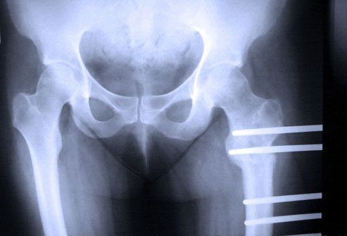 A femoral osteotomy corrects deformities of the femur (thigh bone).