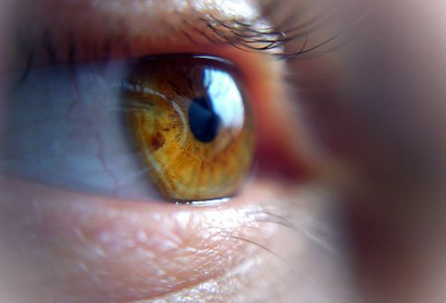 Pneumatic retinopexy is one of the surgical treatments to repair a detached retina and restore vision.